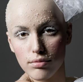 Glatzen (mit Fotoshooting)
